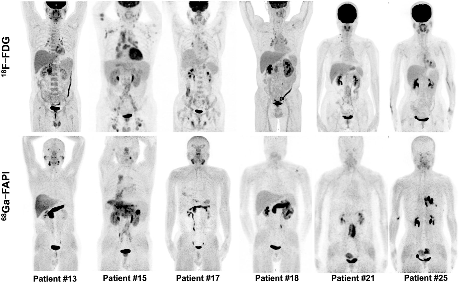 Fibroblast Activation Protein–Targeted PET/CT with 68Ga-FAPI for Imaging IgG4-Related Disease: Comparison to 18F-FDG PET/CT